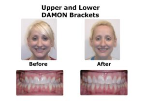 damon-brackets